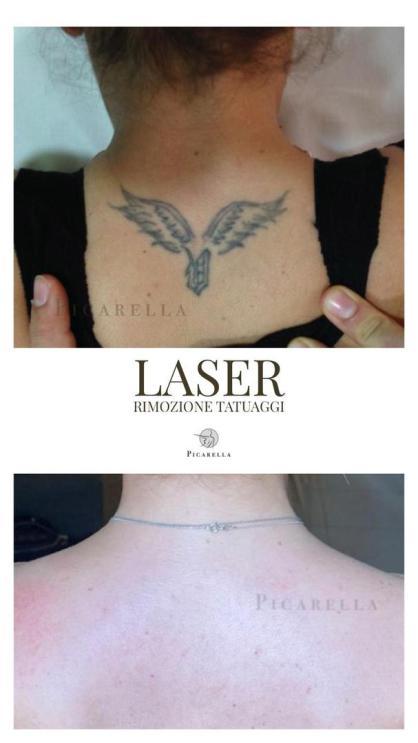 Laser q-switched sicilia