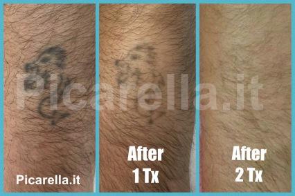 laser tatuaggi sicilia