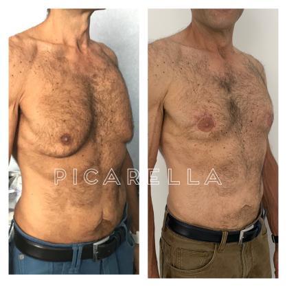 Giuseppe Picarella - Ginecomastia e Mastopessi